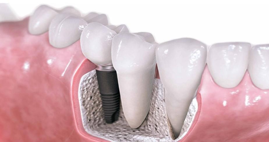 Zubni implantati su umjetna tvorevina od titana